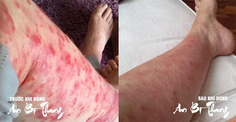 Hình ảnh sau 2 tháng điều trị chàm của bác Thanh