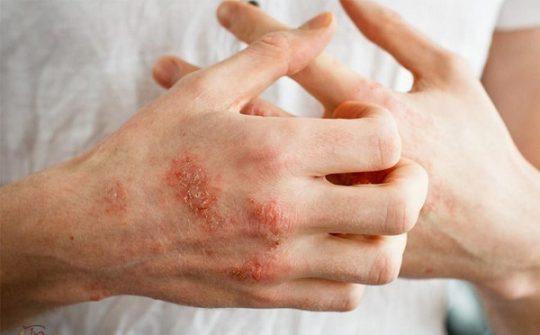 Bệnh chàm da