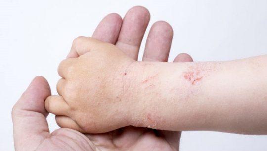Trẻ em có tỷ lệ bị bệnh chàm da khá cao.