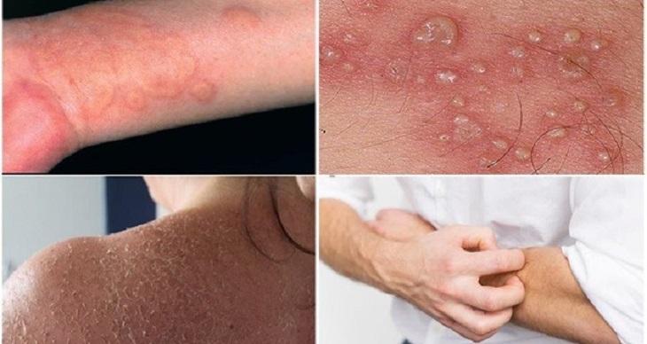 Bệnh chàm có những biểu hiện thường gặp dễ hiện biết