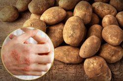 Vì sao lại chọn cách chữa chàm bằng khoai tây?