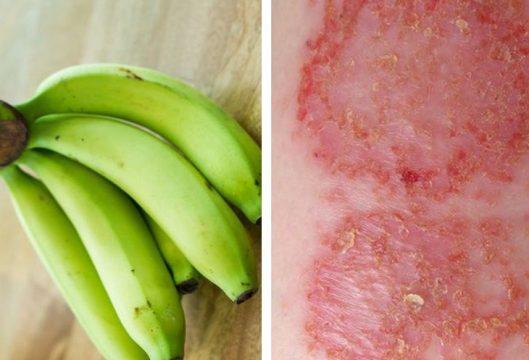 Chữa chàm bằng chuối xanh giúp cải thiện rất tốt tình trạng bệnh chàm