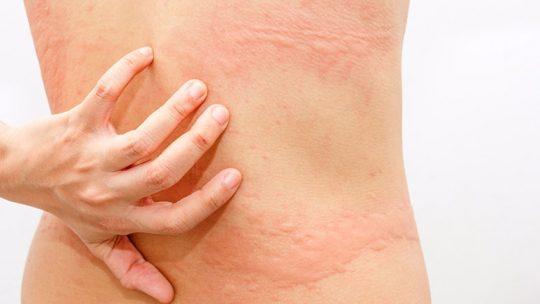 Nổi mề đay toàn thân gây ngứa ngáy và tiềm ẩn nhiều nguy hiểm