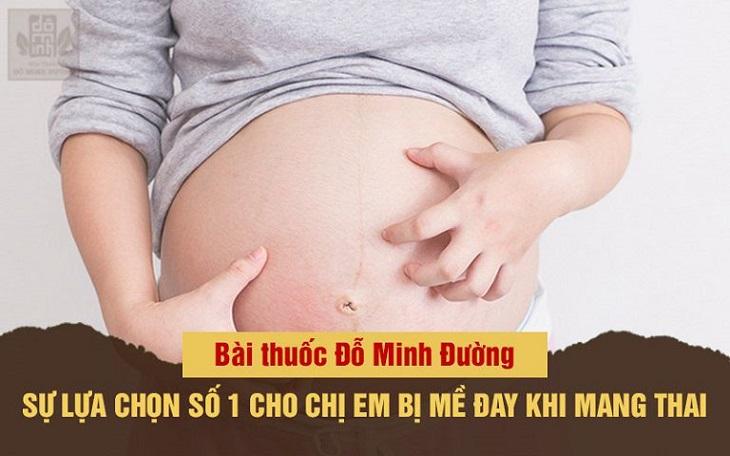 Bài thuốc chữa nổi mề đay khi mang thai của Đỗ Minh Đường