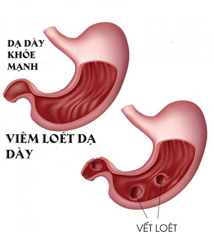 Viêm loét dạ dày là biến chứng bệnh dạ dày
