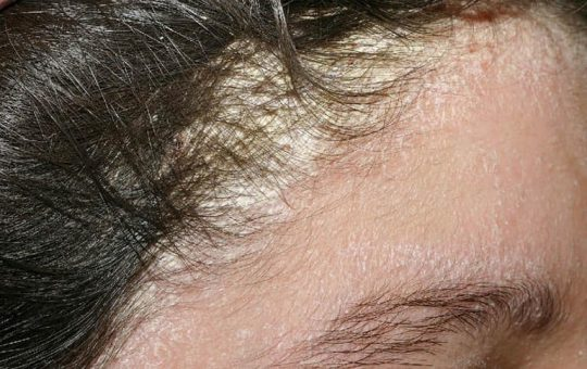 Cách điều trị viêm da tiết bã tận gốc, hiệu quả