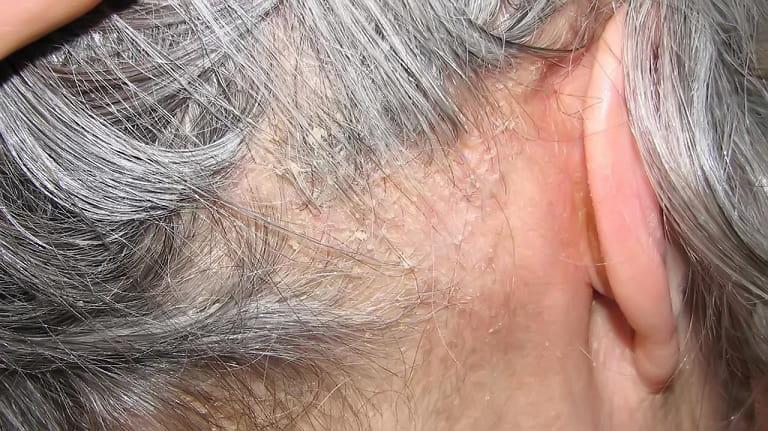 Điều trị viêm da tiết bã tận gốc, hiệu quả như thế nào?
