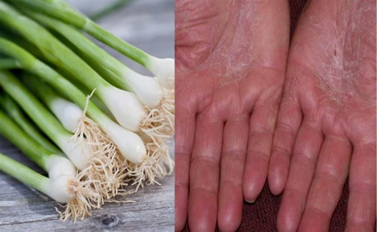 Dùng hành hoa tác động trực tiếp lên da sẽ cho hiệu quả nhanh chóng hơn