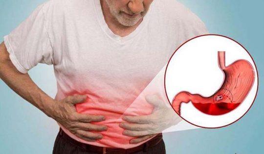 Đau dạ dày là bệnh tiêu hóa phổ biến