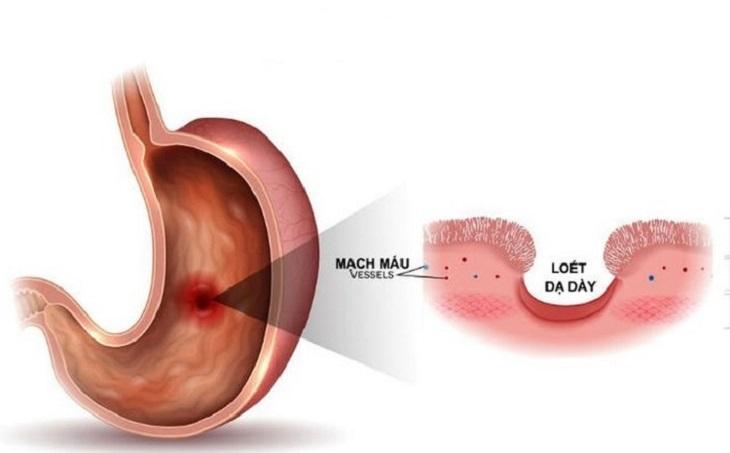 Đau dạ dày có mấy cấp độ