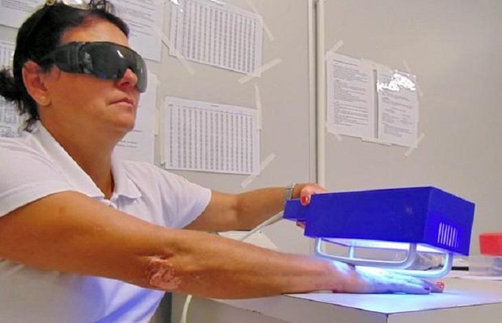 Trị chàm khô bằng phương pháp quang hóa trị liệu có thể giảm tác dụng phụ của thuốc