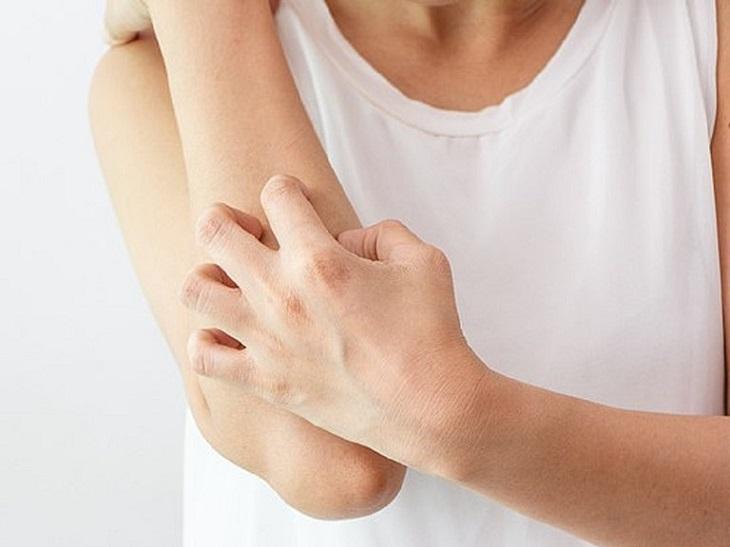 Chà xát, gãi mạnh làm lây lan nhanh và rộng bệnh viêm da tiếp xúc