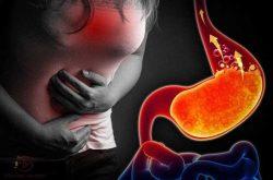 Trào ngược dạ dày là căn bệnh gây hại lớn đến hệ tiêu hóa