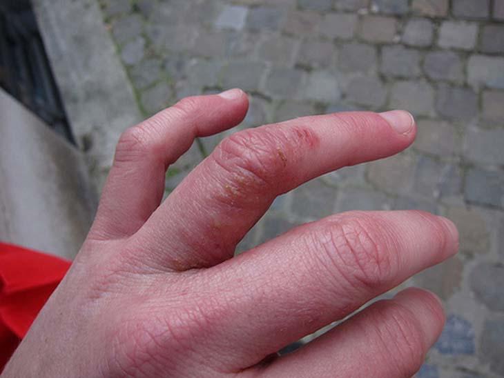 Triệu chứng viêm da dị ứng ở tay