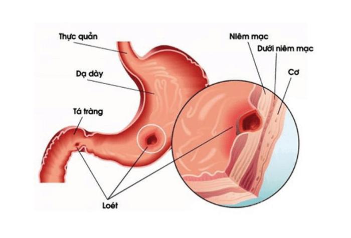 Vị trí đau dạ dày được quyết định bởi vị trí dạ dày trong ổ bụng