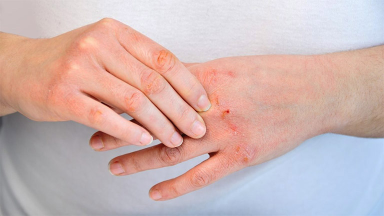 Viêm da cơ địa khiến người bệnh mất tự tin khi giao tiếp