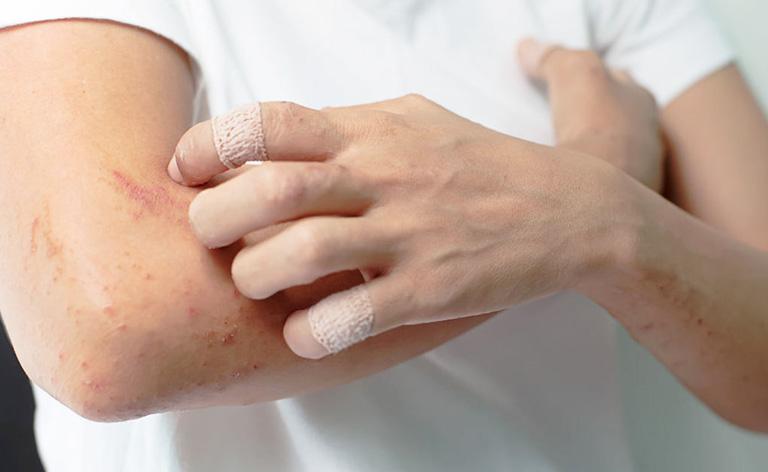 Việc chà xát, gãi có thể khiến bệnh trở nên trầm trọng hơn