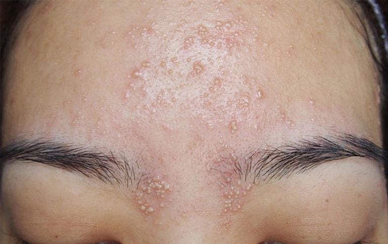 Da mặt có mụn li ti