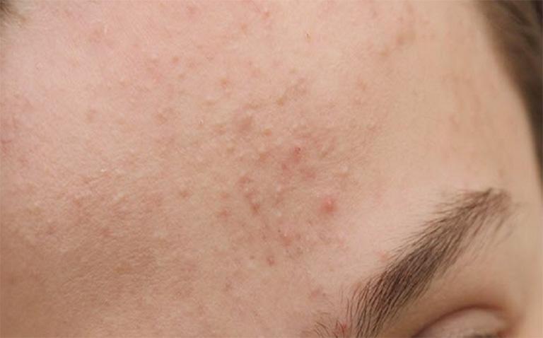 Viêm da dị ứng ở mặt có nguy hiểm không?