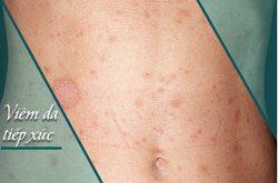 Viêm da tiếp xúc là bệnh da liễu thường gặp hiện nay