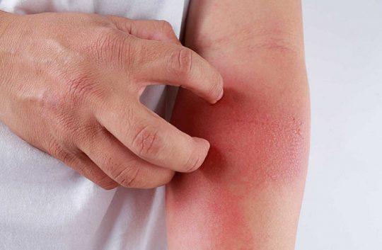 Viêm da tiếp xúc bao lâu thì khỏi phụ thuộc vào nhiều yếu tố