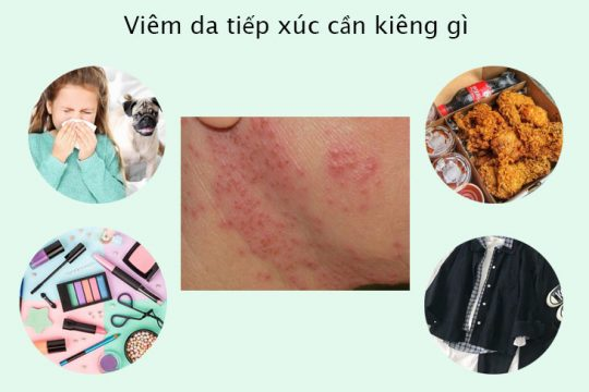 Viêm da tiếp xúc cần kiêng gì để có thể khỏi bệnh nhanh chóng