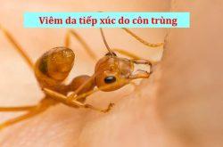 Viêm da tiếp xúc côn trùng là bệnh lý thường gặp