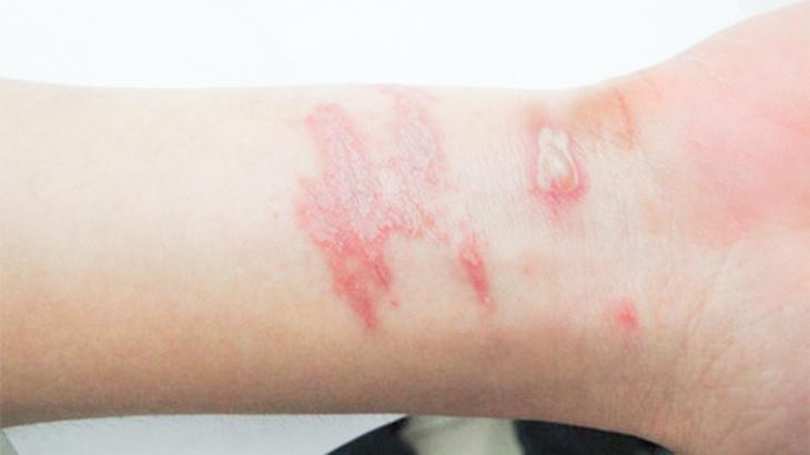 Hình ảnh bệnh viêm tiếp xúc kích ứng do côn trùng