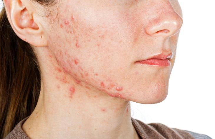 Hình ảnh bệnh viêm da tiếp xúc dị ứng ở mặt