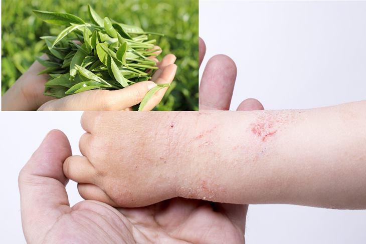 Dùng lá trà xanh chữa viêm da do tiếp xúc mang lại hiệu quả tốt