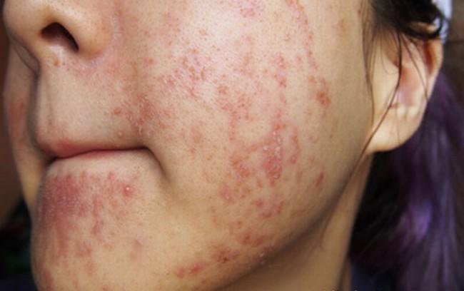 Bệnh viêm da tiếp tiếp xúc dị ứng ở mặt