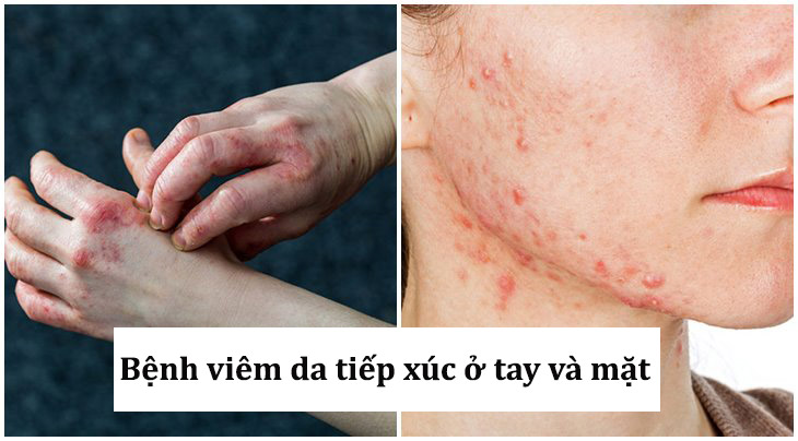 Viêm da tiếp xúc ở tay và mặt là những vị trí thường gặp