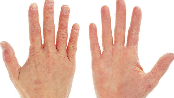 Viêm da tiếp xúc ở tay thường xuất hiện do tiếp xúc hóa chất