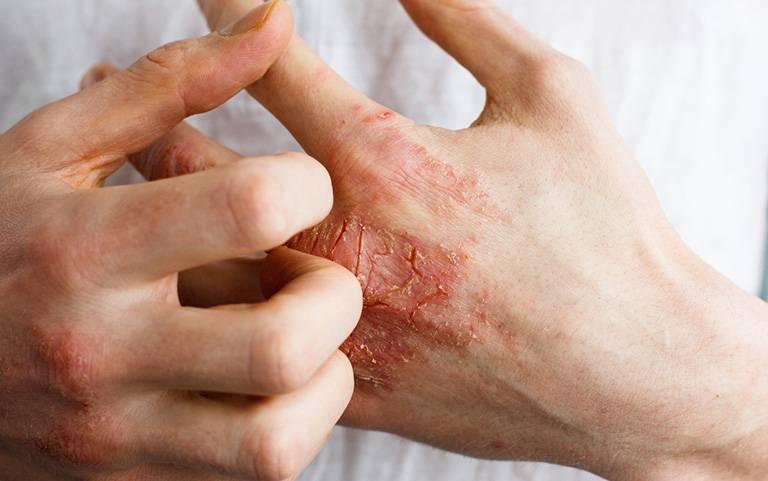 Cần tìm ra tác nhân gây viêm da tiếp xúc để loại bỏ chúng