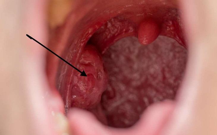 Viêm họng kéo dài có thể dẫn đến ung thư vòm họng.