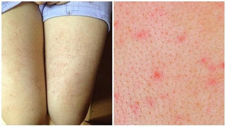 Hình ảnh viêm lỗ chân lông ở chân