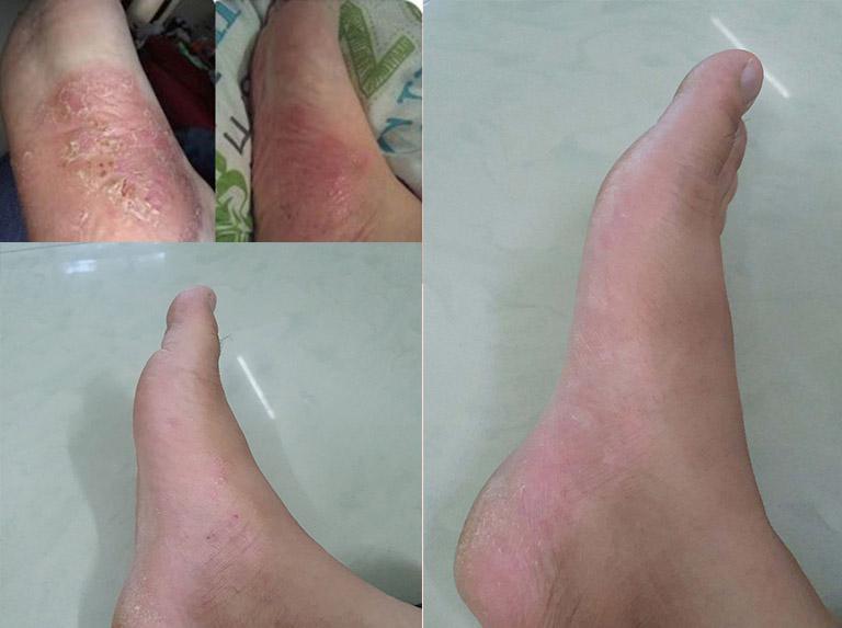 Hình ảnh trước và sau điều trị viêm da tiếp xúc của chú Châu