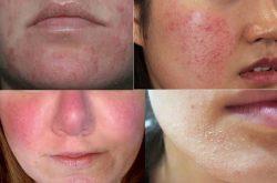 Da nhiễm corticoid có chữa được không phụ thuộc vào mức độ tổn thương da