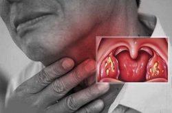 Viêm họng mãn tính có nguy hiểm không là thắc mắc của nhiều người bệnh