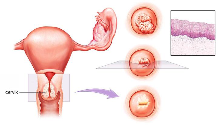 Hình ảnh viêm tái tạo cổ tử cung
