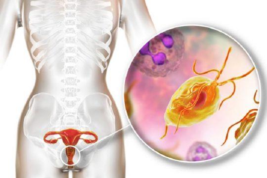 Bệnh viêm âm đạo do vi khuẩn