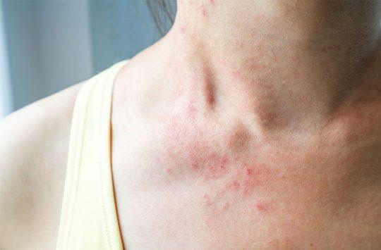 Bệnh viêm da dị ứng có thể xảy ra ở bất kỳ ai