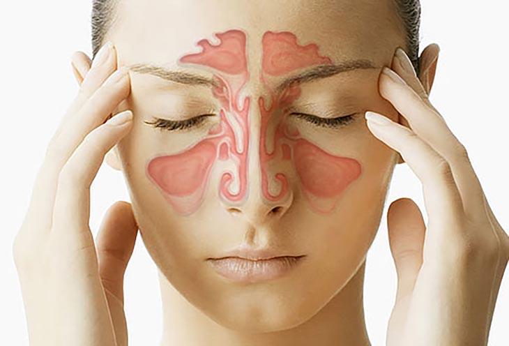 Lợi ích nhận được sau khi người bị viêm xoang nâng mũi