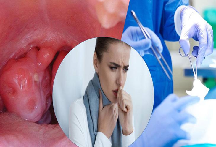 Biến chứng sau cắt amidan khiến người bệnh lo lắng