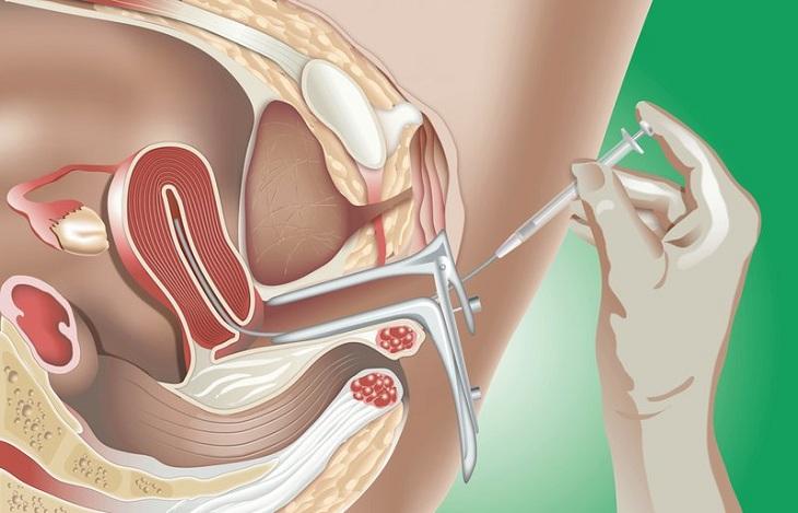 Các bác sĩ chuyên khoa khuyên người bị buồng trứng đa nang có nên làm IUI hoặc IVF để tăng khả năng thụ thai