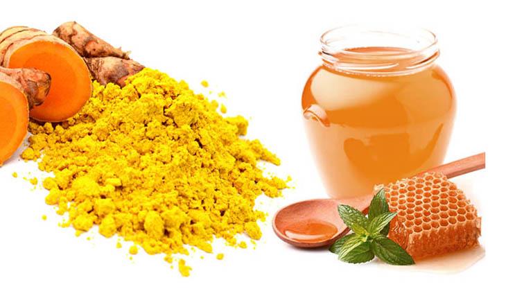 Trị viêm họng bằng nghệ và mật ong cho hiệu quả tốt