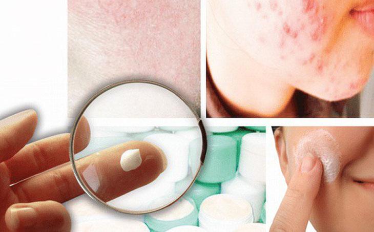 Cai nghiện corticoid cho da đúng cách để da phục hồi dần dần