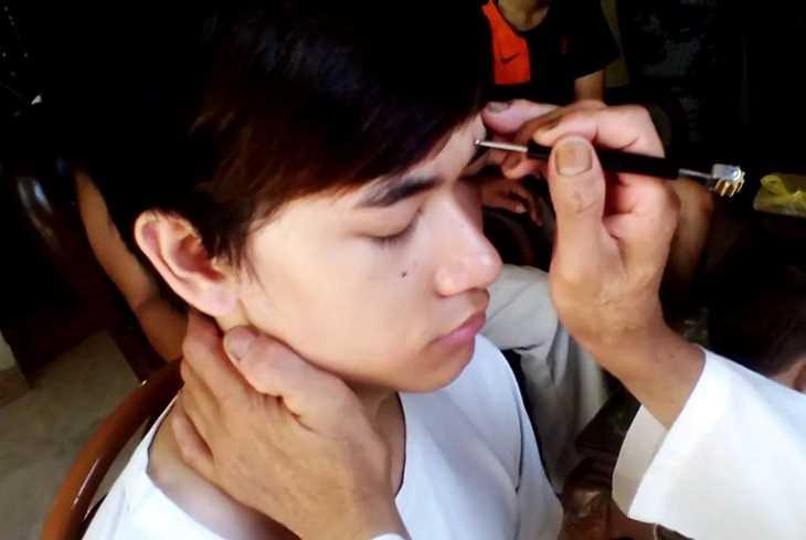 Diện chẩn là một biện pháp chữa bệnh mới, thông qua các huyệt đạo trên gương mặt.