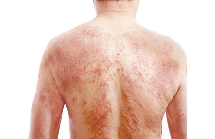 Bệnh mề đay trong Đông y do cả yếu tố nội sinh và ngoại sinh gây nên