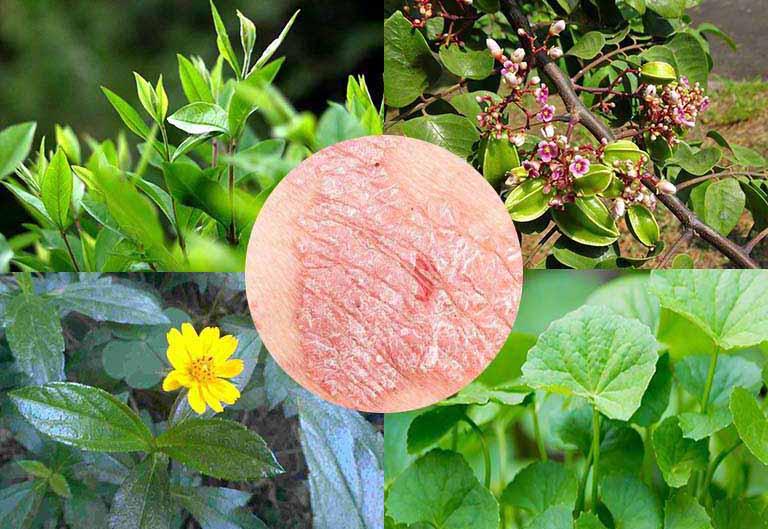 Bài thuốc kết hợp lá khế và các loại thảo dược để trị bệnh vảy nến